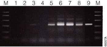 Amplification of eubacterial 16S rRNA from fecal DNA extracted using the Maxwell 16 Tissue DNA Purification Kit.